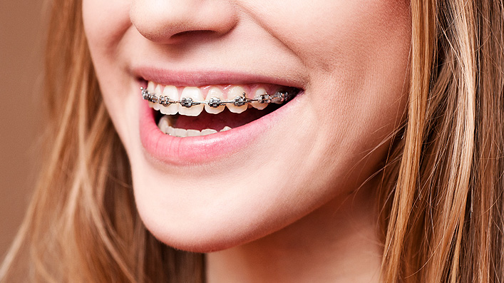 Close up of young girl's mouth with braces