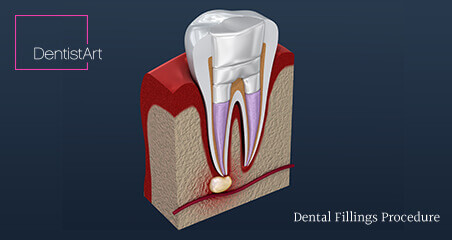 Are There Alternatives to Root Canal Therapy?