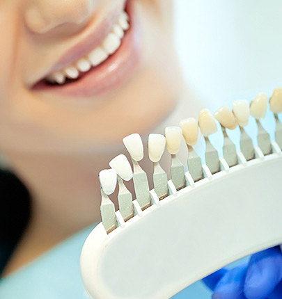 Dentist holding rack of display implants to match patients tooth shade