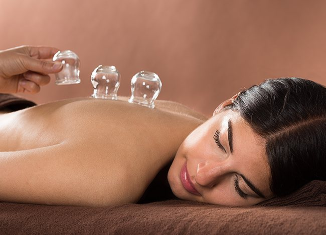a woman getting ready for a cupping massage